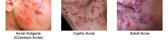 Image of different types of acne we treat in orlando